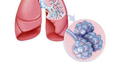 Der rechte Lungenflügel hat drei Lappen, der linke zwei. In den Lungenbläschen (vergrößerter Ausschnitt) findet der Gasaustausch statt
