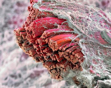 Skelet-Muskel (rot) mit Muskelfasern und -bündel, sowie Bindegewebe (weiss) Faszien