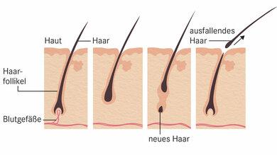 Zunächst wächst das Haar und wird von Blutgefäßen ernährt. Diese Phase dauert zwei bis sechs Jahre. Dann ruht es für einige Monate – bis ein neues Haar nachkommt und das alte ausfällt.