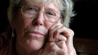 Frau mit deutlicher durch Rheuma bedingter Arthritis in den Händen