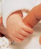 Zuhause: Ein bisschen gelb kann das Baby dann noch sein