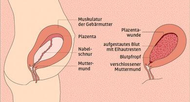 Eine handtellergroße Wunde bleibt nach der Geburt an der Stelle zurück, an der die Plazenta in der Gebärmutter angehaftet war. Legt sich ein Blutpfropf, Eihaut- oder Plazentarest vor den Muttermund, kann der Wochenfluss nicht mehr ablaufen