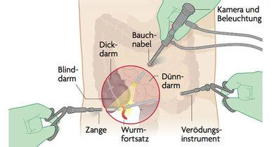 Bei der Schlüssellochmethode entfernt der Chirurg den Blinddarm mittels drei kleiner Schnitte (zur vollständigen Ansicht bitte auf die Lupe klicken)