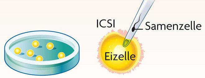 ICSI-Erklärgrafik