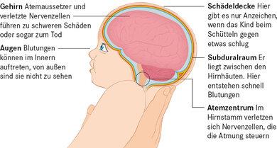 Sensibler Mini-Schädel: Wird ein kleines Kind heftig vor und zurück geschüttelt, nehmen zahlreiche Strukturen im Kopf Schaden. Äußerlich zeigt sich das Schütteltrauma nur sehr unspezifisch, etwa durch Müdigkeit oder Atemnot.