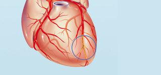 Krankes Herzkranzgefäß