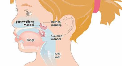 Rachen- und Gaumenmandeln haben sehr unterschiedliche Funktionen