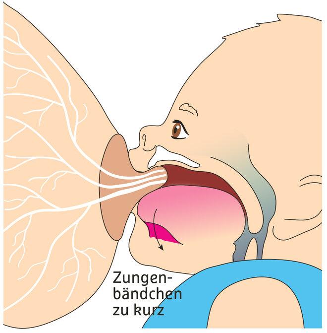 Illustration Stillprobleme Zungenbändchen Zungenband vorne