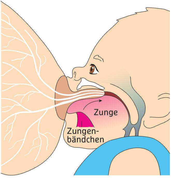 Illustration Stillprobleme Zungenbändchen Zungenband hinten