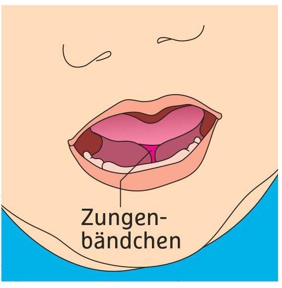 Illustration Zungenbändchen
