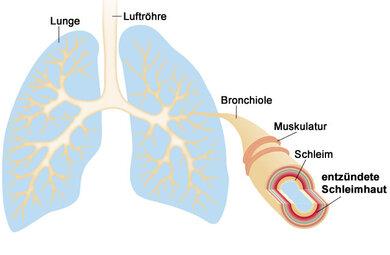 Bei einer Bronchitis schwillt die Schleimhaut der Bronchien an. Diese produzieren mehr Schleim. Beides verengt die Atemwege