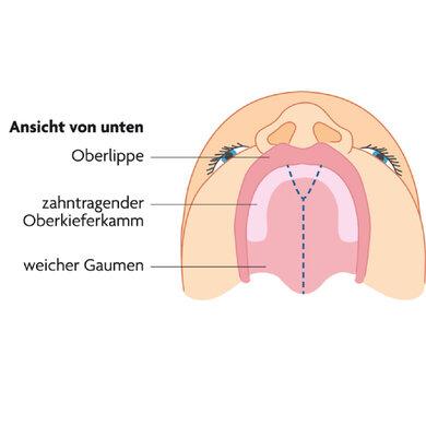 Normalerweise verschließt sich die Gaumenspalte während der Schwangerschaft (gestrichelte Linie)