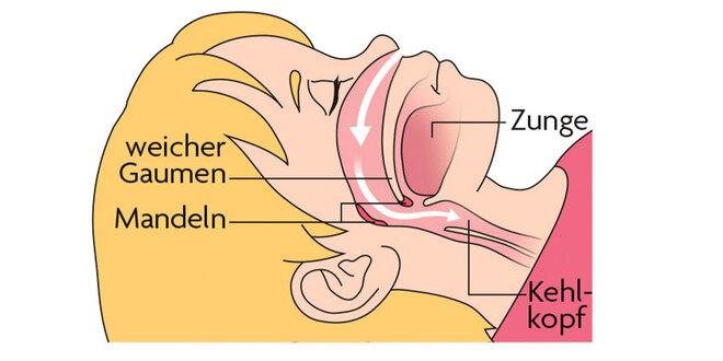 gesund Infografik, Mandeln, Hals, Rachen, Apnoe