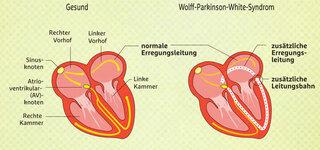 WPW-Syndrom