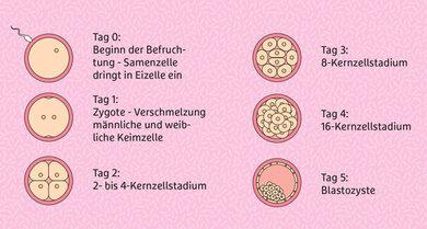 Eine Embryonenspende erfolgt meist mit einer befruchteten Eizelle ab dem dritten Entwicklungstag.