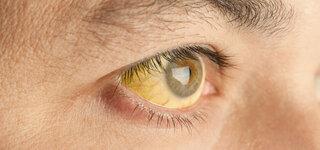 Die Gelbsucht (Ikterus) kann unter anderem durch eine Hepatitis verursacht werden