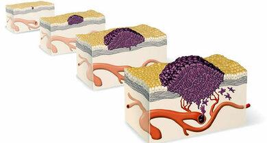 Tumore können wachsen und Anschluss an die Blutbahn finden