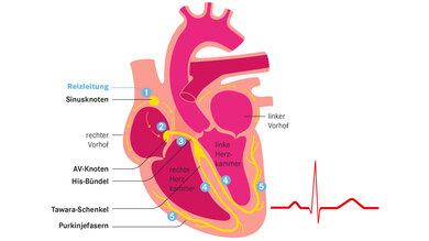 Ungefähr 100000 Mal schlägt das Herz pro Tag. Sein Muskel wird durch elektrische Impulse gesteuert: Im Sinusknoten (1) entsteht ein elektrischer Impuls, der zum AV-Knoten (2) gelangt. Dieser leitet ihn zum His-Bündel (3), das sich in einen rechten und einen linken Kammerschenkel (Tawara-Schenkel) aufteilt. Die beiden Schenkel ziehen sich entlang beider Seiten der Kammerscheidewand (4). An deren Ende teilen sie sich in die Purkinje-fasern (5) auf. Die Fasern leiten den Impuls direkt weiter in die Muskulatur der Herzkammern.