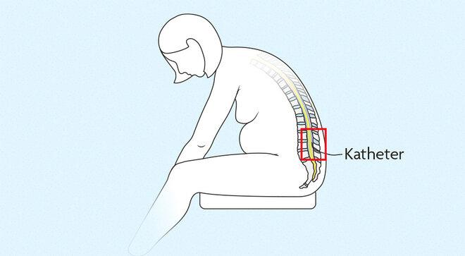 Infografik Einführung eines Katheter in die Lendenwirbelsäule