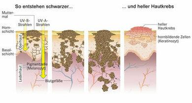 So entsteht schwarzer und heller Hautkrebs