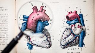 Angina pectoris Herz