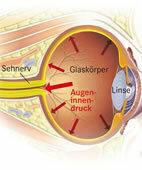 Glaukom: Erhöhter Augeninnendruck schädigt den Sehnerv