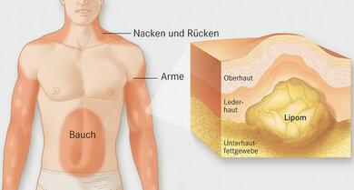 Das Unterhautfettgewebe verhärtet und verdickt sich – ein Lipom entsteht