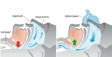 So hilft eine Atemmaske: Bei der Schlafapnoe erschlaffen die Rachenwege im Schlaf zu stark, so dass die Atmung behindert ist. Mit einer Atemmaske, die während des Schlafes getragen wird, werden sie durch einen von einem Kompressor erzeugten Luftstrom offen gehalten