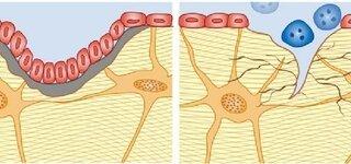 Osteoklasten und Osteoblasten bauen den Knochen um