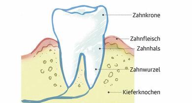 Ein gesunder Zahn sitzt fest im Kieferknochen. Das Zahnfleisch hat eine rosige Farbe und liegt direkt am Zahnhals an