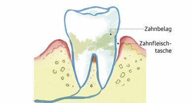 Eine Parodontitis entsteht, wenn sich bakterielle Zahnbeläge bilden. Zunächst entzündet sich das Zahnfleisch, dann weicht es vom Zahn zurück. Ohne Behandlung lockert sich der Zahn und fällt aus