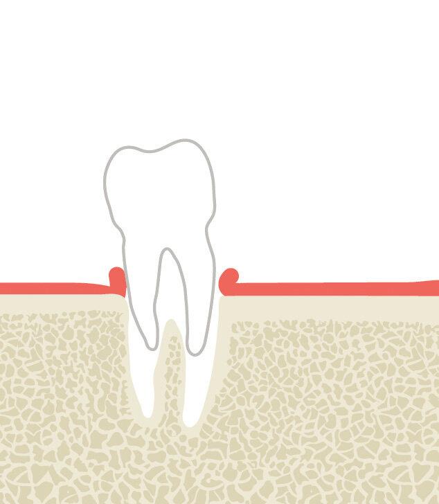 Infografik Zahn Zähne Implantat
