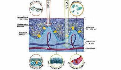 Schema der Arbeitsgemeinschaft Dermatologische Prävention zur Entstehung von Sonnenbrand