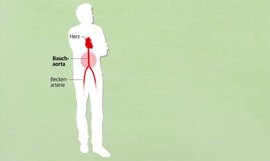 Die Hauptschlag- ader (Aorta) kann sich im Bauchbereich erweitern, ohne dass man etwas davon spürt