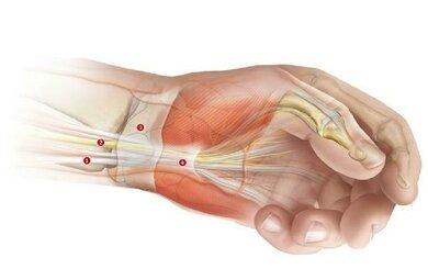 Kranke Muskeln können kraftlos oder verkrampft sein