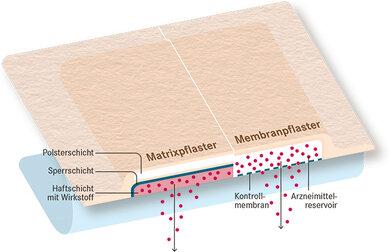 Matrix- und Membranpflaster: Über die Haut direkt ins Blut