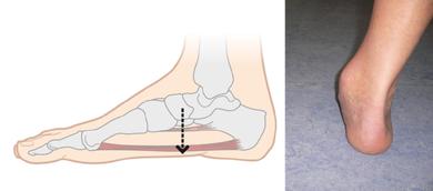 Knick-, Senk-, Plattfuß: Das Längsgewölbe des Fußes senkt sich ab. Die Ferse kippt nach außen