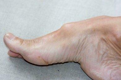 Ein Hohlfuß entsteht, wenn das Längsgewölbe des Fußes stark überhöht ist