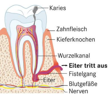 Wird ein Abszess nicht behandelt, kann Eiter durch das Zahnfleisch bis zur Mundhöhle durchdringen