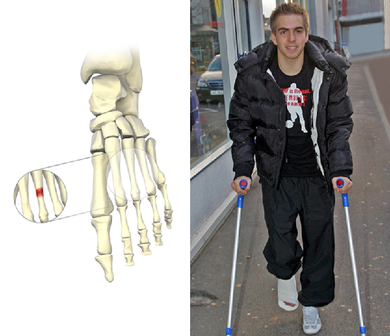 Häufig treten Ermüdungsbrüche an den Mittelfußknochen auf. Im Januar 2005 hatte es auch Fußballstar Philipp Lahm erwischt