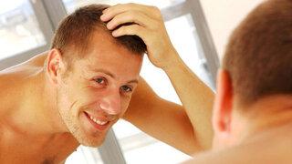 Mann mit Haarausfall