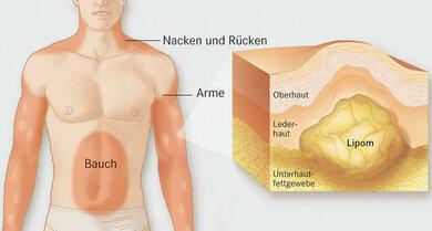 Lipome sind gutartige Fettgeschwülste im Unterhautfettgewebe, die unter anderem an Rücken, Hals und Armen vorkommen können