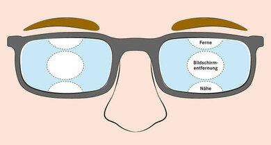 Schematische Darstellung einer Bildschirmbrille