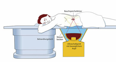 Den Tumor verheizen: Ein Patient liegt auf dem Behandlungstisch. Darunter befindet sich das Ultrachallgerät. Das Wasserbad dazwischen macht die zielgerichtete Lenkung der Schallwellen durch ein Loch im Tisch in die Bauchspeicheldrüse möglich