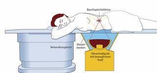 Ultraschallbestrahlung
