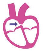 Bis vor kurzem galt es als zu riskant, Öffnungen im Herzen chirurgisch zu schließen. Aktuelle Studien ändern diese Sichtweise
