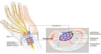 Zu wenig Platz: Bei einem Karpaltunnelsyndrom hat der Mittelnerv im Karpaltunnel - der Raum zwischen Handwurzelknochen und Karpalband - zu wenig Platz. Es kommt zu Entzündungen, der Nerv ist in seiner Funktion beeinträchtigt. Die Folgen sind Kribbeln, Schmerzen und Taubheitsgefühle in der Hand, ausgenommen der kleine Finger