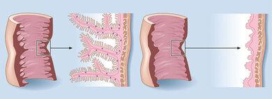 Dünndarmschleimhaut: Links normal, rechts komplett abgeflacht (totale Zottenatrophie, schematisch)
