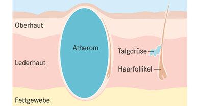 Verkapselt: Atherome bilden sich aus verstopften Talgdrüsen, um die eine Kapsel entsteht