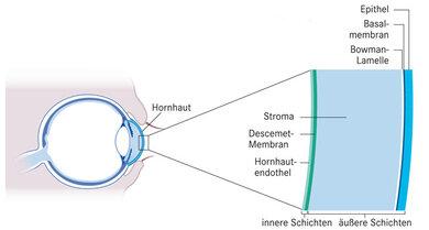 Teilaustausch der Hornhaut: Die Hornhaut besteht aus sechs Schichten. Der außen und der innen liegende Teil können separat ersetzt werden